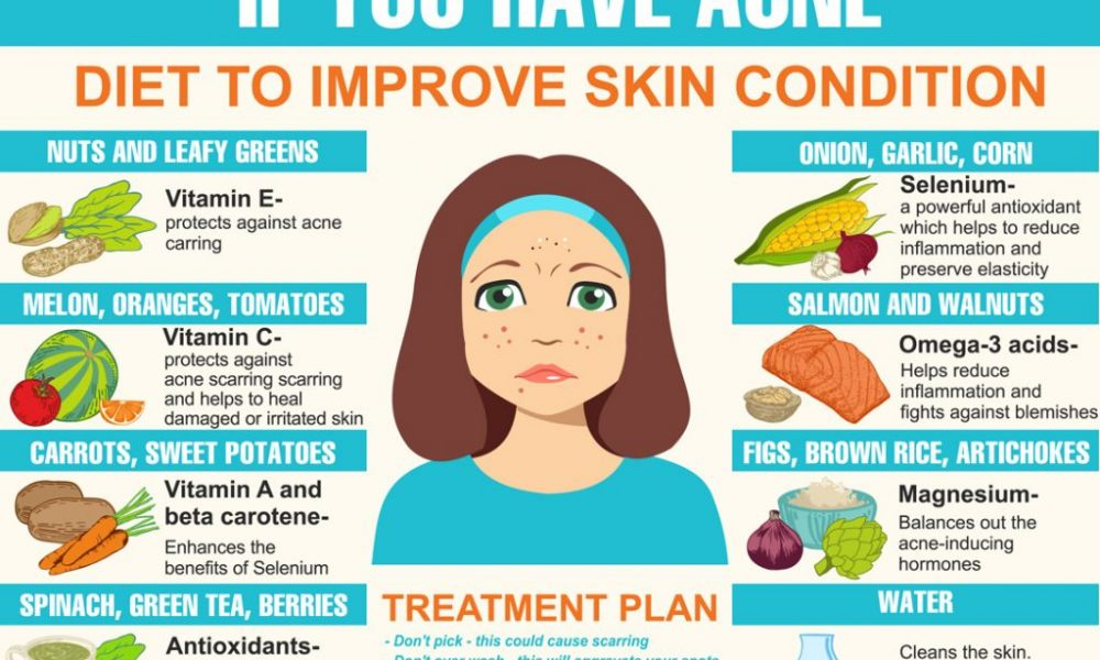 How your diet can impact acne